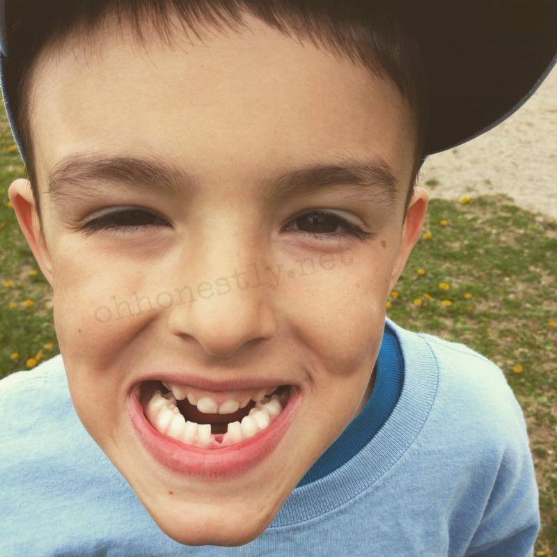 losing baby teeth
